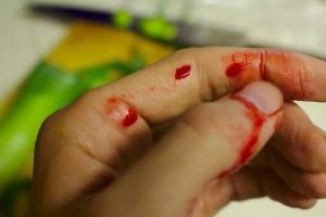 Krvácanie do prsníka